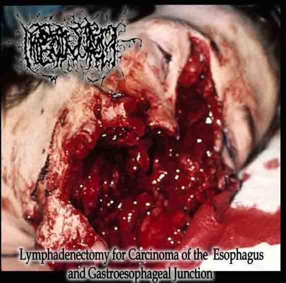 Hipermenorrea
